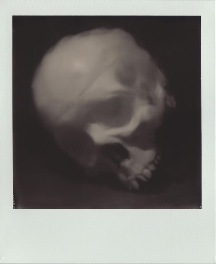 Impression of skull