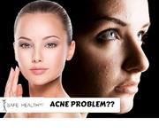 Expert Acne Dermatologist in Lansing & Mt. Pleasant - Safe Health Center