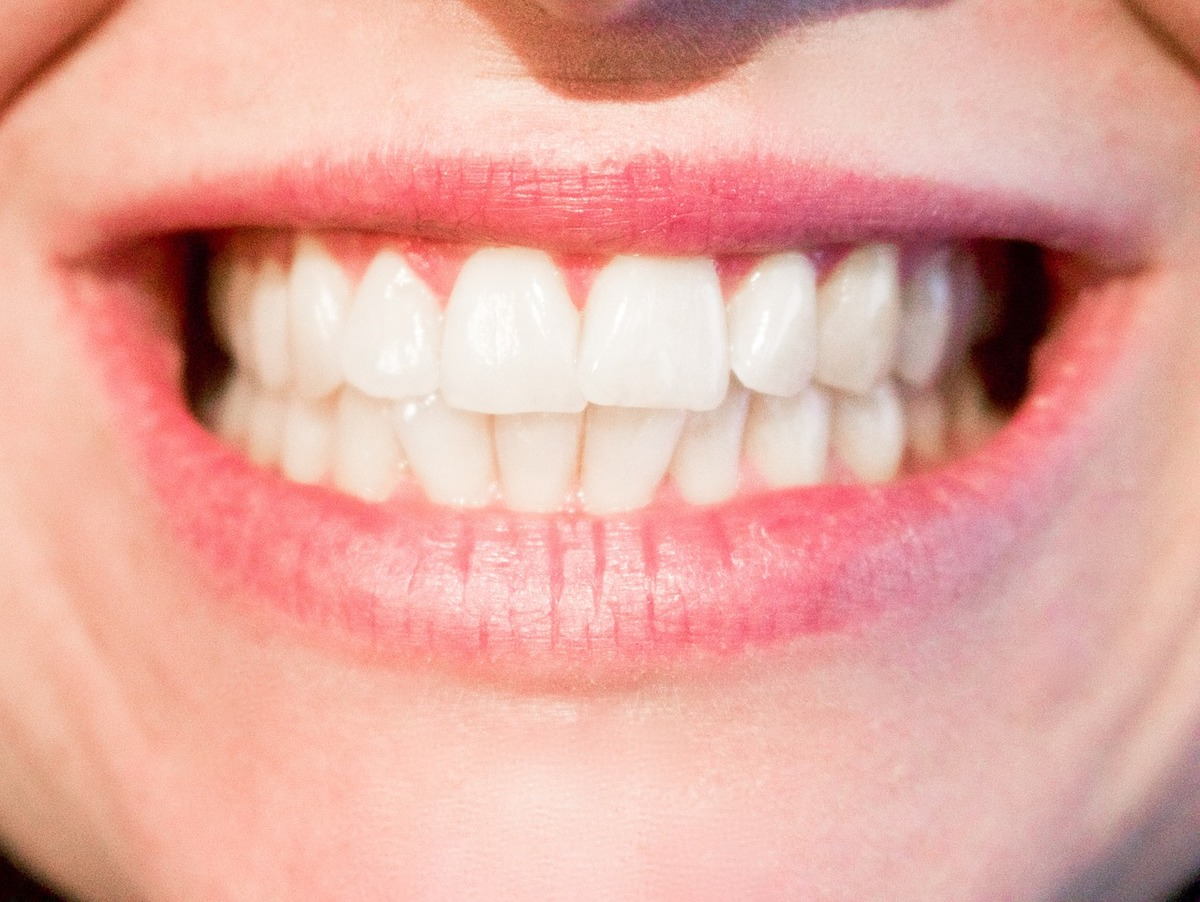 Essentials You Should Know Before You Opt For Dental Veneers:-