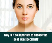 Why is it so important to choose the best skin specialist