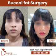 Buccal fat Surgery 1