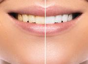 teeth-whitening-hemel-hempstead