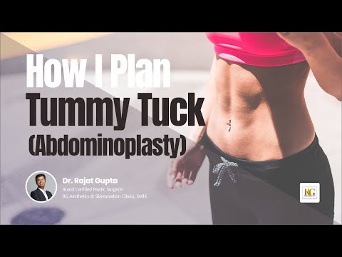 How I plan Tummy Tuck/Abdominoplasty?|Female Body Contouring Procedure|Dr Rajat Gupta, RG Aesthetics
