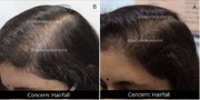Hair Fall Treatment in Delhi, Hair Doctor in Delhi NCR, India