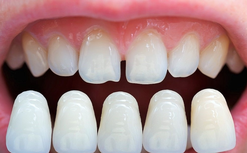 How much do dental veneers cost?