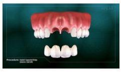 Implant-Supported Bridge (Anterior- CAD/CAM)- Grand Rapids Oral Surgery