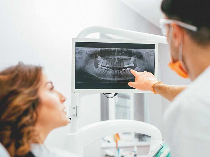 Are Dental X-rays Safe? Here Is What You Need To Know
