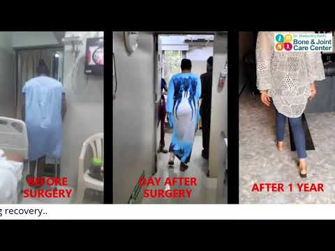 1 Yr Post Hip Replacement Surgery | Dr. Shailendra Patil's Nigerian Patient Hip Replacement Recovery