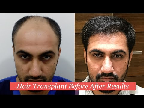 Hair Transplant Before and After Results | Hair Transplant Surgery Before After Results Delhi INDIA
