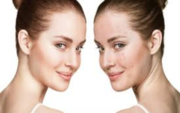 Acne Laser Treatment Lansing and Mt Pleasant by Safe Med Spa