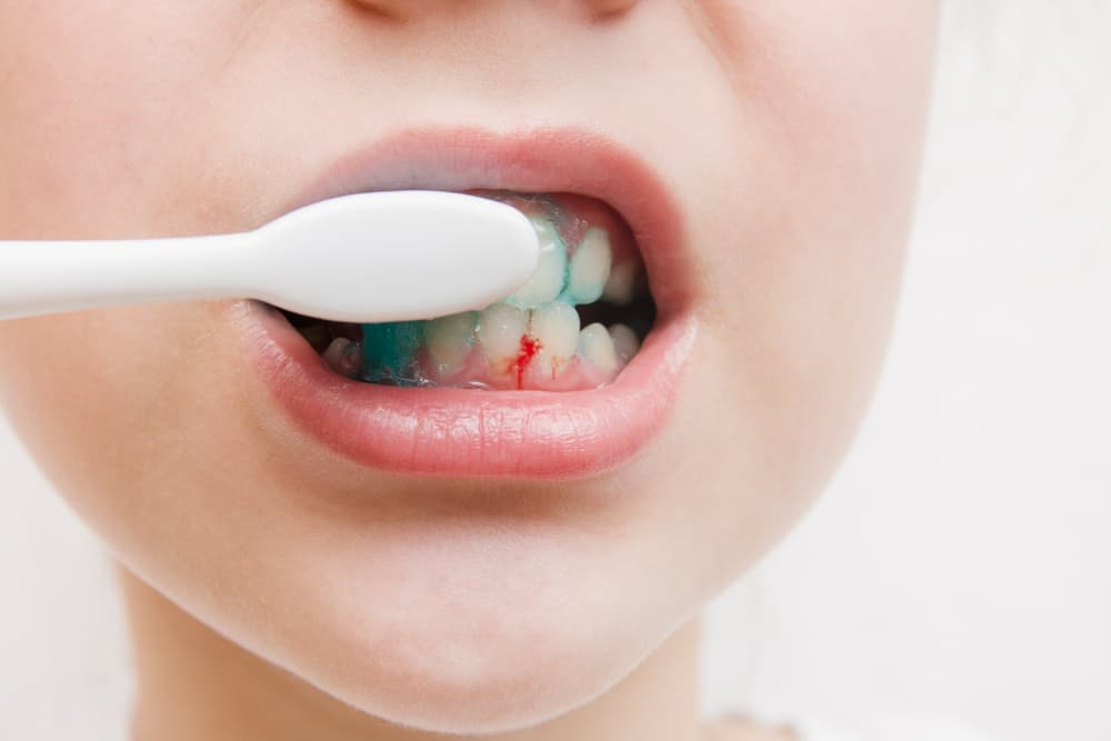6 Causes of Bleeding Gums That You Should Know About