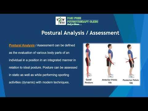 Posture analysis |  Best Physiotherapist in Delhi