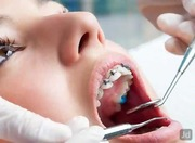 MJDENTIST-Best Dentist in Defence Colony
