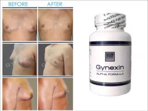 Gynexin Reviews - Watch This To Find The Truth Of Gynexin