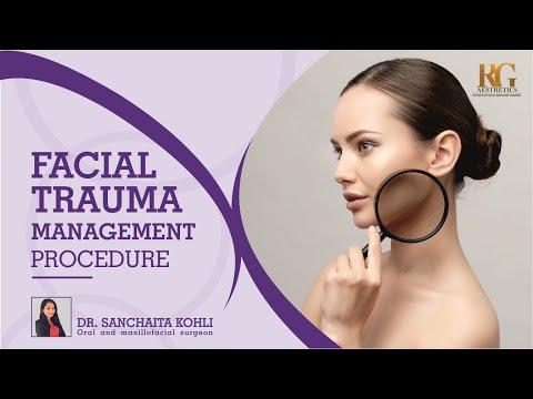 Procedure for Facial Trauma Management | Dr Sanchaita Kohli Oral and Maxillofacial Surgeon