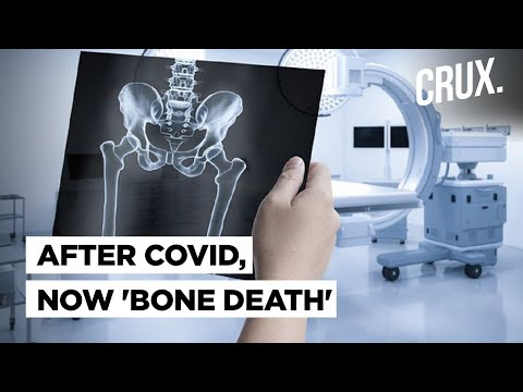 After Black Fungus, now 'Bone Death' Scare Emerges: New Post Covid Complication Explained