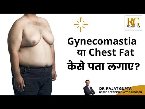 कैसे पता लगाए की मुझे Gynecomastia है या चेस्ट फैट है? Dr. Rajat Gupta - Cosmetic Plastic Surgeon
