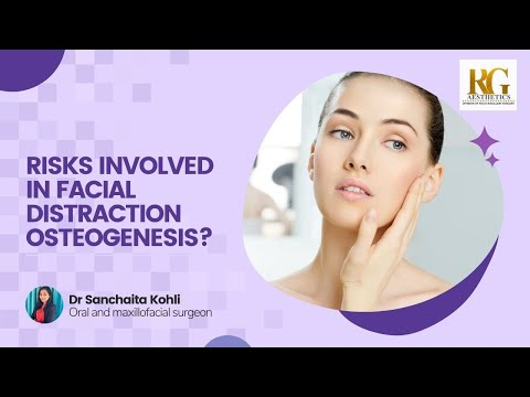 What are some Risks involved in Facial Distraction Osteogenesis? Dr. Sanchaita Kohli