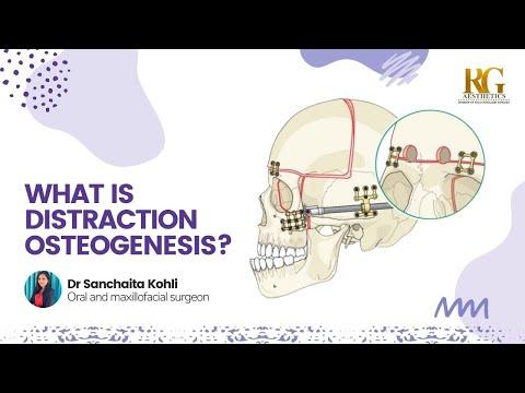 What is Distraction Osteogenesis? Reconstructing your jaw profile | Dr. Sanchaita Kohli, Delhi