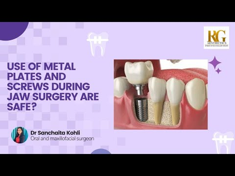 Use of metal plates and screws during jaw surgery are safe? Dr Sanchaita Kohli, Delhi