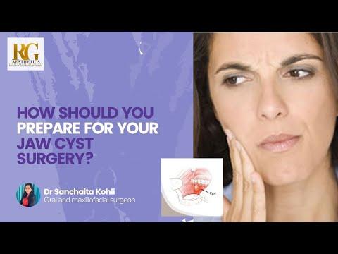 How should you prepare for your jaw cyst surgery? Dr Sanchaita Kohli, Maxillofacial Surgeon Delhi