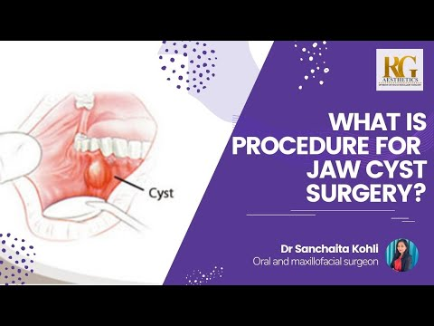 What is the Procedure For Jaw Cyst Surgery? | Dr Sanchaita Kohli | Face Surgery in Delhi