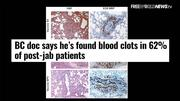 Deadly Blood Clots Develop In 62% of People Receiving COVID Vaccine