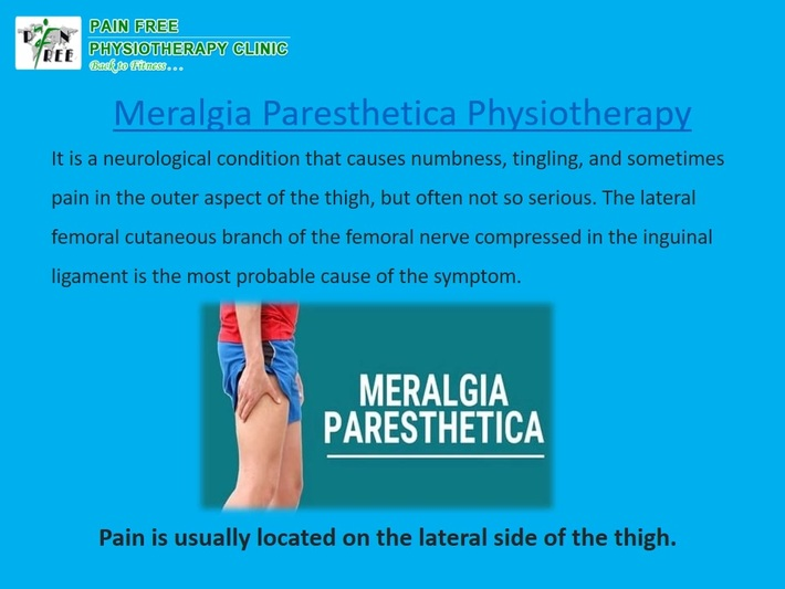 Meralgia Paresthetica Physiotherapy | Pain Free Physiotherapy