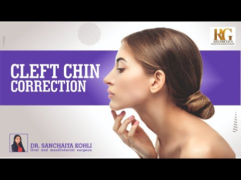 Cleft Chin Correction or Chin Dimple Correction | Dr. Sanchaita Kohli - Oral & Maxillofacial Surgeon