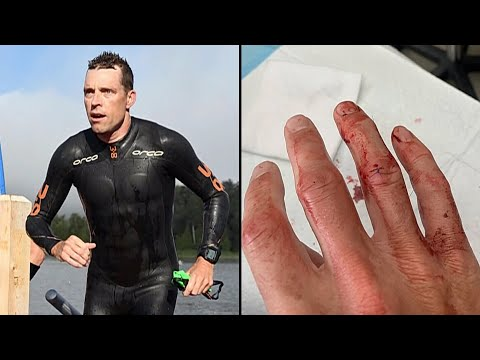 Ironman athlete needs 13 stitches after encounter with muskie fish