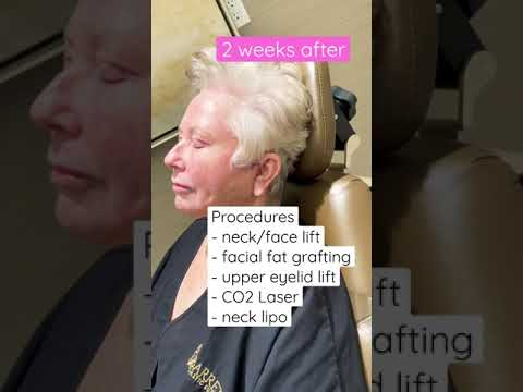 Amazing Face Lift results: Before and After