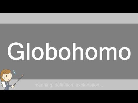 Globohomo