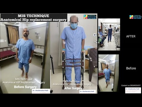 MIS Technique|| Anatomical HIP Replacement surgery in mulund,Thane.