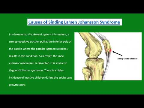 Sinding Larsen Johansson Syndrome | Pain Free Physiotherapy Clinic