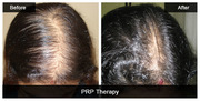 Know all about PRP Therapy in Details by Dermatologists