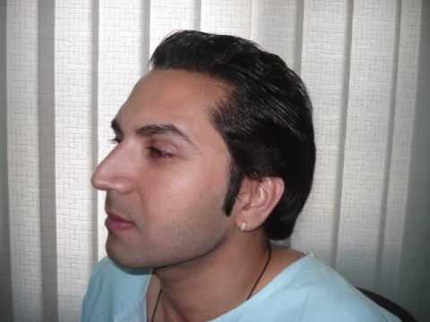 Best Hair Transplant Center in Islamabad